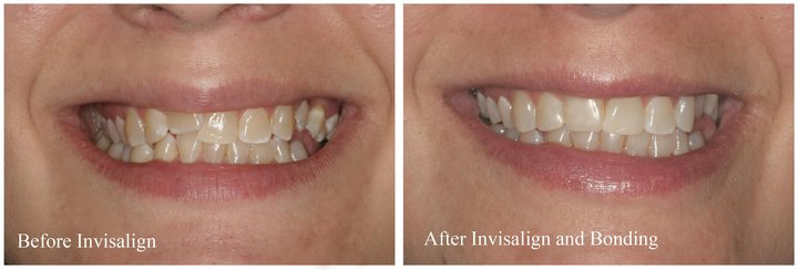 Before and After Invisalign and some cosmetic bonding
